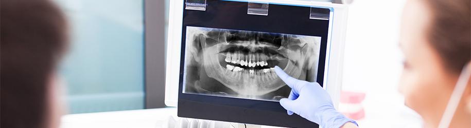 Elevación de seno maxilar