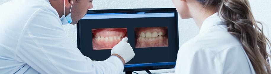 Dentición mixta y mordida cruzada anterior