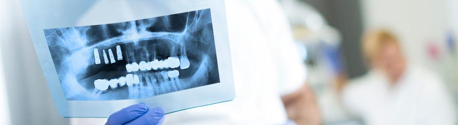 Tratamiento con implantes para prótesis parcial fija