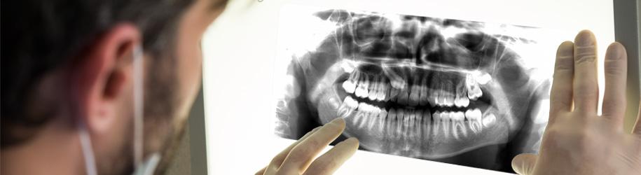 Radiografía de un canino incluido